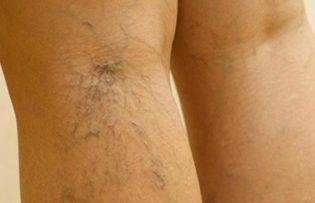 thrombophlebitis visszerek a lábakon kezelés