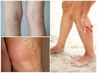 visszér a lábán tünetek fotó