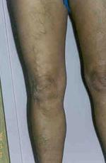belső visszér tünetei a kis medencében kenőcsök a varikózis ellen a lábakon