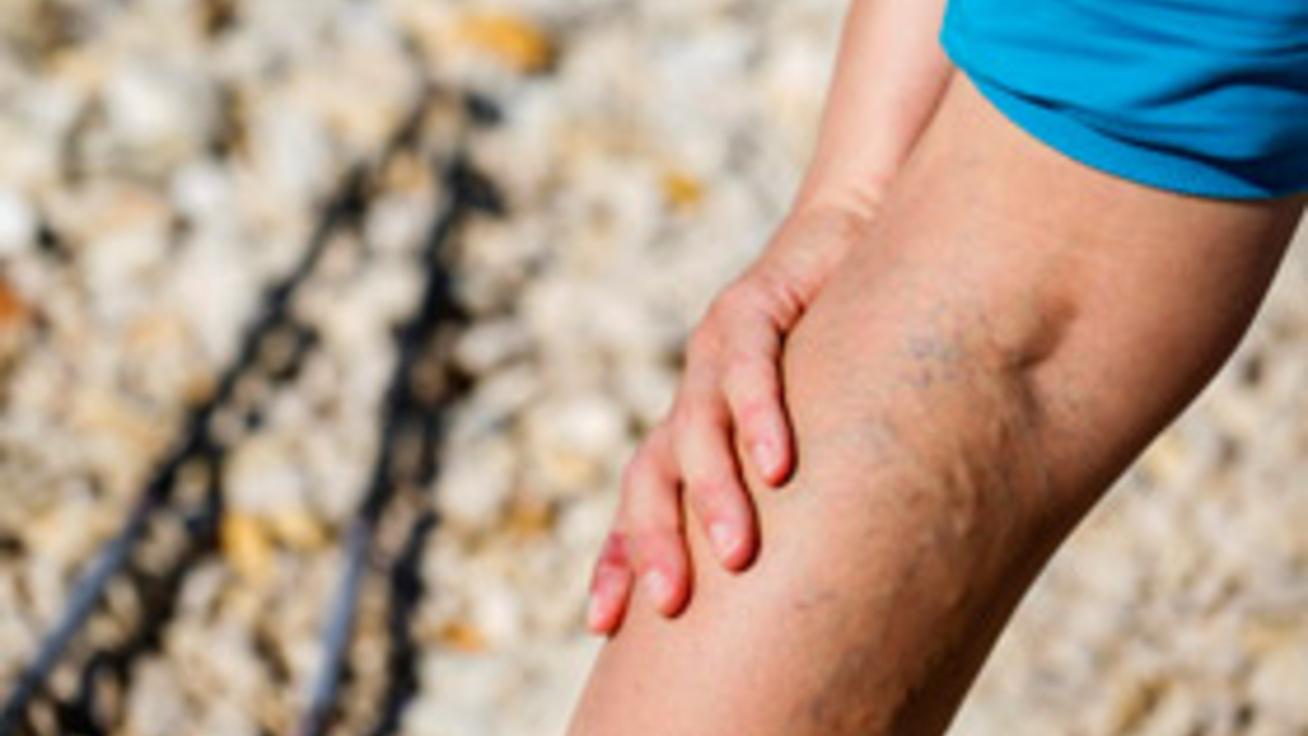 visszér esetén, amely segít videoműtét a visszeres lábakon