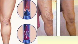 visszér férfiaknál a lábakon következmények miért húzza a visszeres lábakat