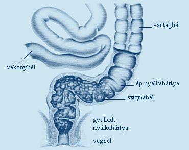 Vékony- és vastagbél betegségek