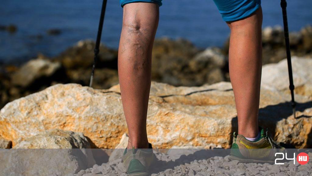 víz és a lábak visszér